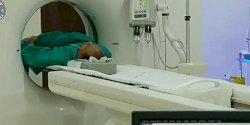 Penyebab Sutopo Idap Kanker Paru-paru Meski Tidak Pernah Merokok